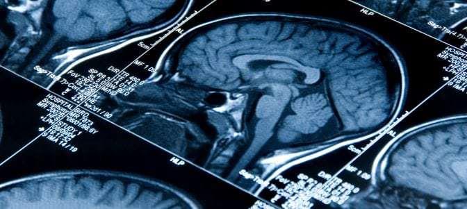Estudio: los mexicano-estadounidenses se enfrentan a un riesgo mucho más alto de ataque cerebral