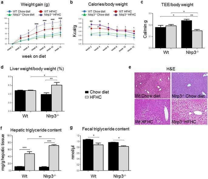 Lack of NLRP3-inflammasome leads to gut-liver axis derangement, gut dysbiosis and a worsened phenotype in a mouse model of NAFLD