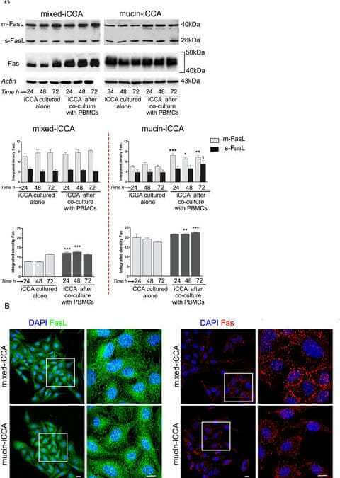 Activation of Fas/FasL pathway and the role of c-FLIP in primary culture of human cholangiocarcinoma cells