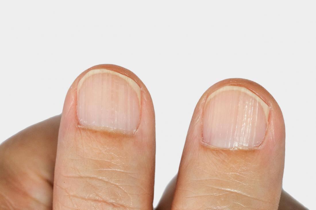 Fingernagel Längsrillen