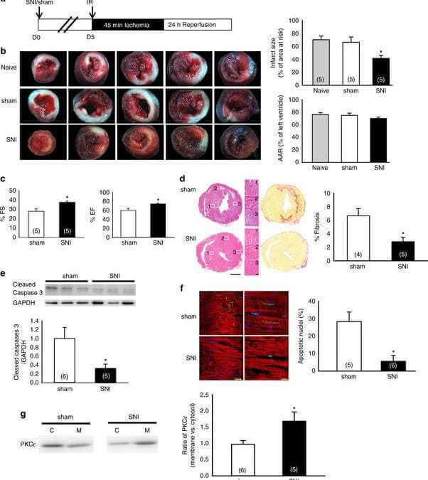 Cardioprotection induced in a mouse model of neuropathic pain via anterior nucleus of paraventricular thalamus