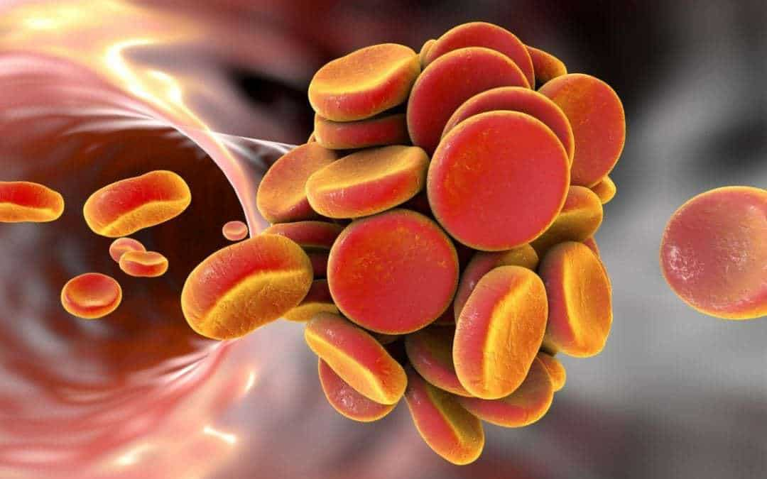 Common allergy drugs may prevent blood clots