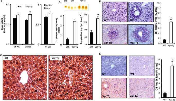 HIV-1 viral protein R (Vpr) induces fatty liver in mice via LXRα and PPARα dysregulation: implications for HIV-specific pathogenesis of NAFLD