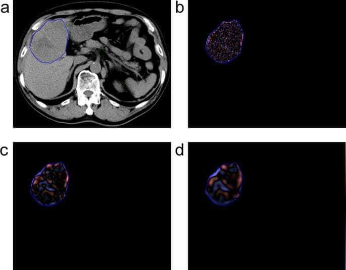 Impact of hepatocellular carcinoma heterogeneity on computed tomography as a prognostic indicator