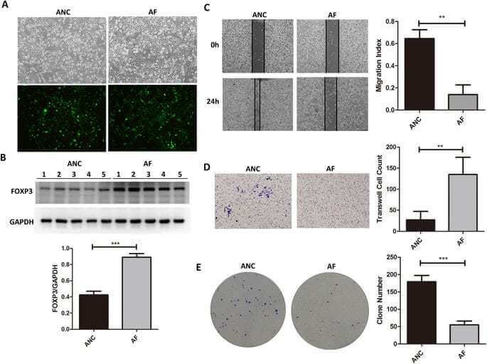 Quantitative proteomic Analysis Reveals up-regulation of caveolin-1 in FOXP3-overexpressed human gastric cancer cells