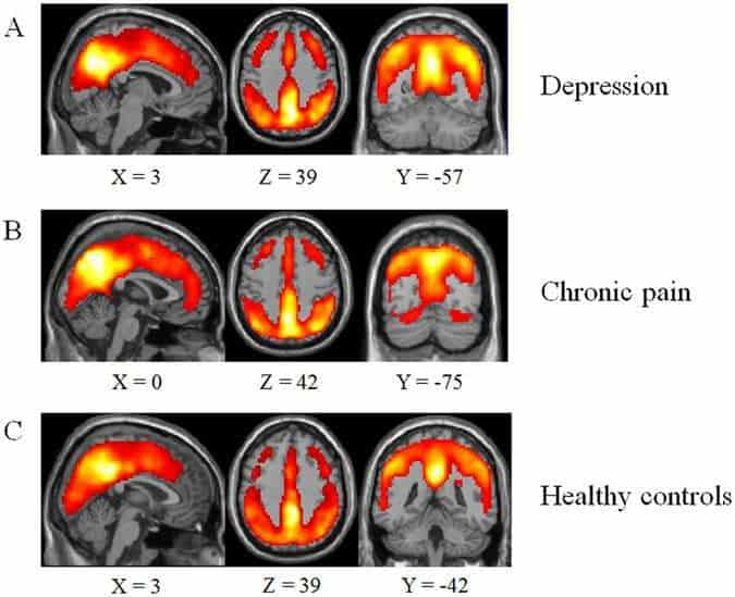 Regional brain functions in the resting state indicative of potential differences between depression and chronic pain