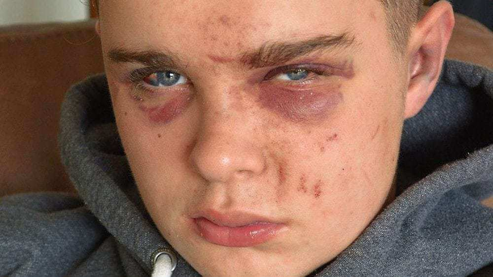 Thousands sign petition after paramedic makes plea following attack on teenager