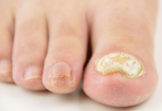 Why Do Toenails Become Thick  Medicalrecordscom-8355