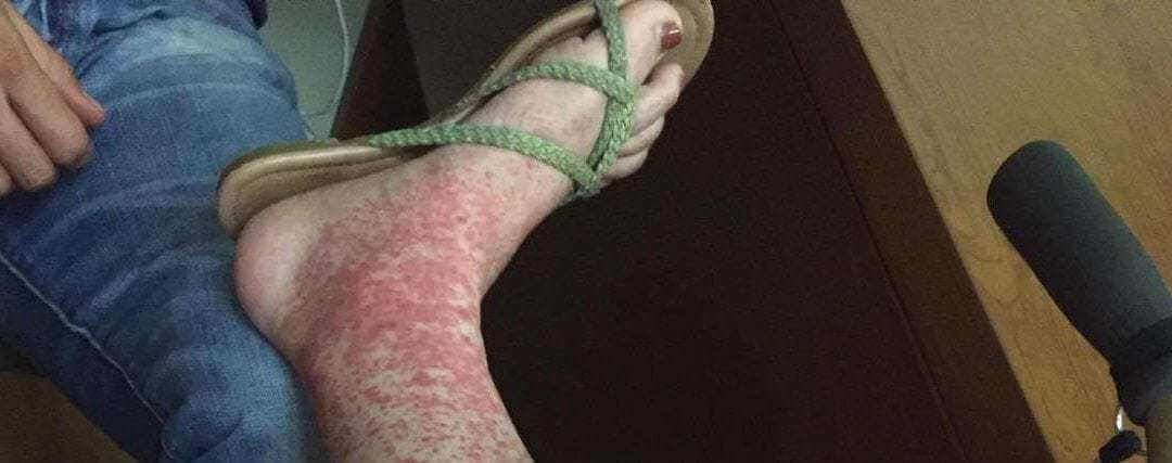 Woman Shares Photo of What Her Leg Looked Like After a Tick Bite